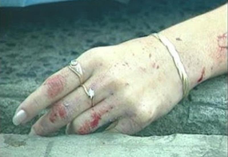 Mujer víctima de feminicidio.
