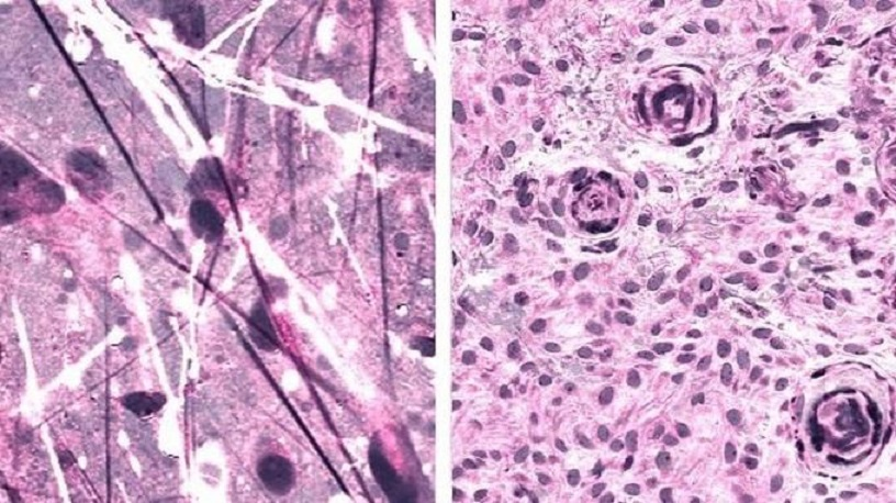 Imágenes ópticas con inteligencia artificial detecta tumores cerebrales.