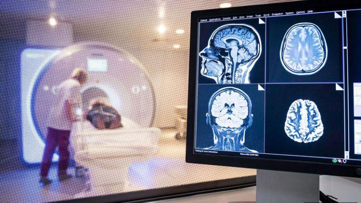 Médicos advierten los efectos que el covid-19 puede tener en el cerebro