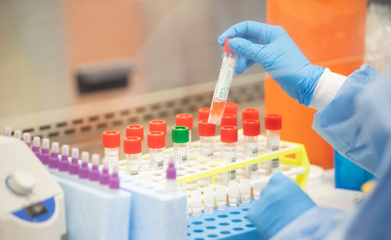 AstraZeneca realiza investigación sobre tratamiento contra coronavirus.
